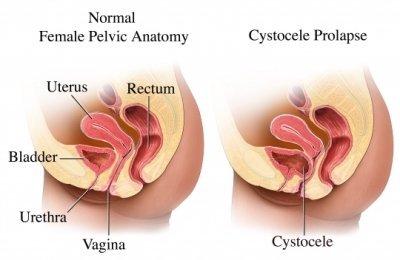 Verzakking van de blaas in de vagina
