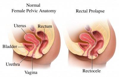 Verzakking van het rectum